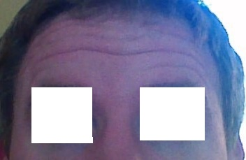 forehead_before_edited