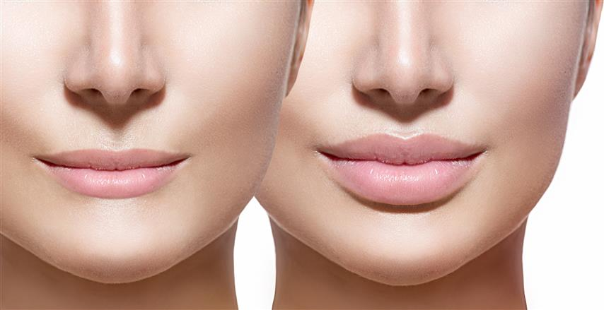lips_before_and_after